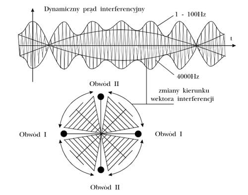Dynamiczny prąd interferencyjny