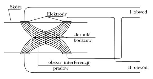 Kształty prądów interferencyjnych wg. Nemeca generowanych przez aparat